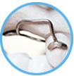 Orthodontische hulpmiddelen