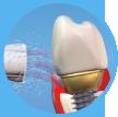 Verzorging voor tandheelkundige aanpassingen
