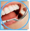 Symptomen, oorzaken en behandeling van tandvleesontsteking