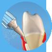 Reiniging en behandeling van parodontale pockets